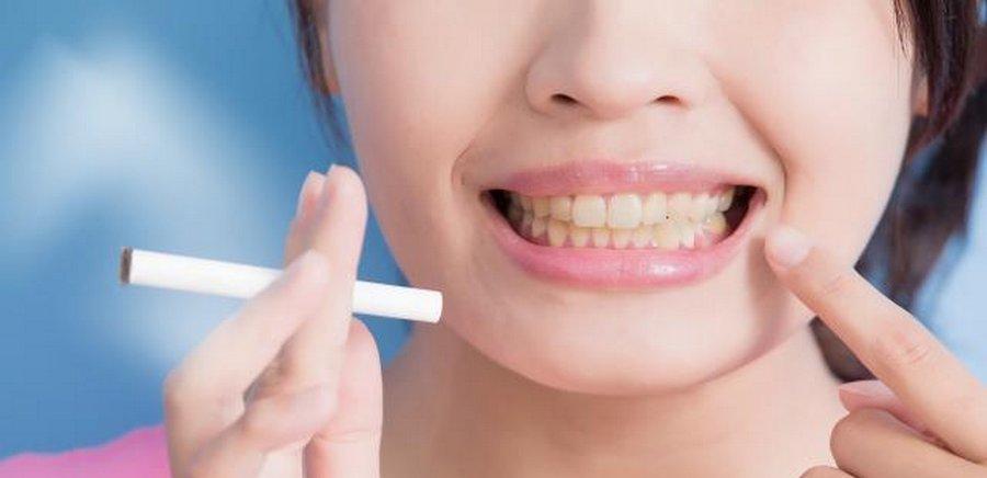 Курение может привести к заболеванию десен