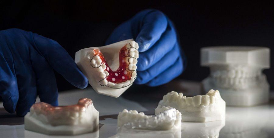Изготовление ортодонтических аппаратов