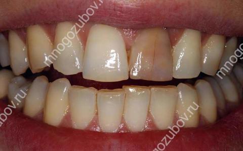 Дисколорит – изменение цвета зубной эмали