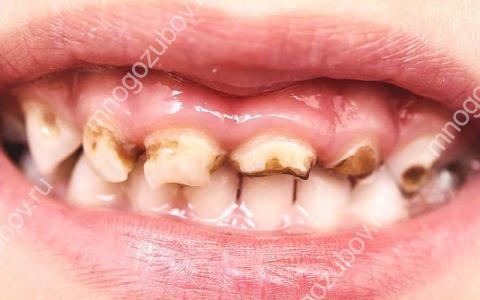 Что делать, если портятся молочные зубы