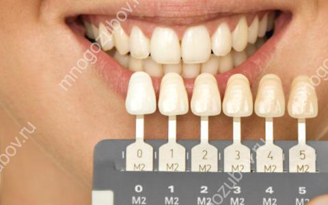 Тонкости применения Шкалы Вита для определения цвета зубов