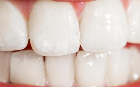 Истончение зубной эмали: основные причины, восстановление эмали