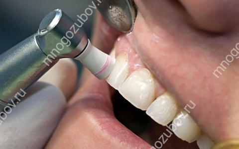 Как удалить налет с зубов