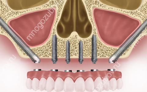 Что такое скуловая имплантация зубов