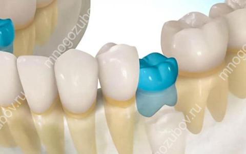 Что такое анкилоз зуба