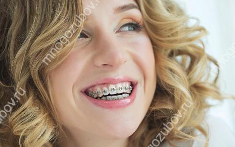 Как выровнять зубы взрослому человеку