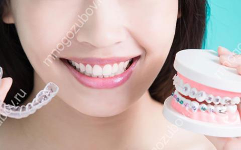 Как выровнять прикус зубов