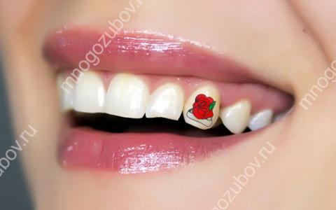 Тату на зубах – как их делают?