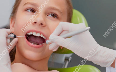 Что делать, когда у ребенка налет на зубах