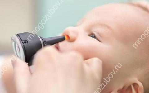 Почему текут сопли при прорезывании зубов