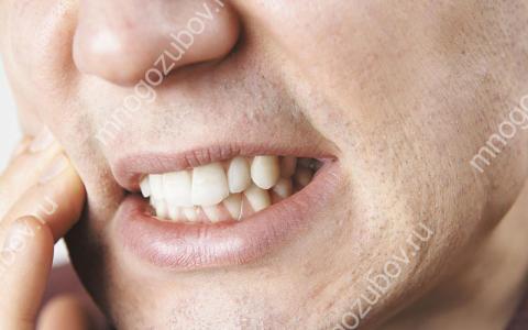 Как успокоить оголенный нерв в зубе