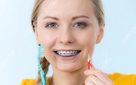Как часто нужно чистить зубы с брекетами