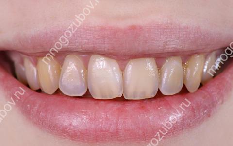 Что такое эрозия зуба