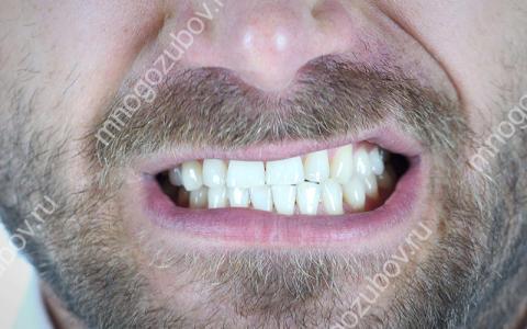Почему скрипят зубы во время еды