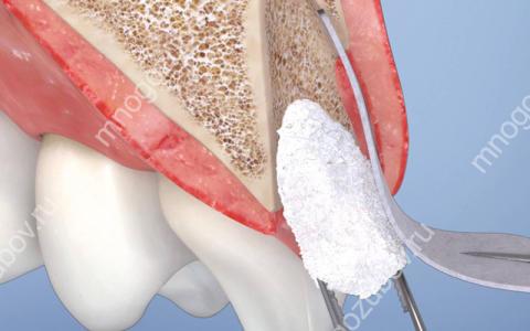 Что такое дренаж после удаления зуба