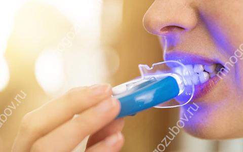 Как безопасно отбелить зубы дома?