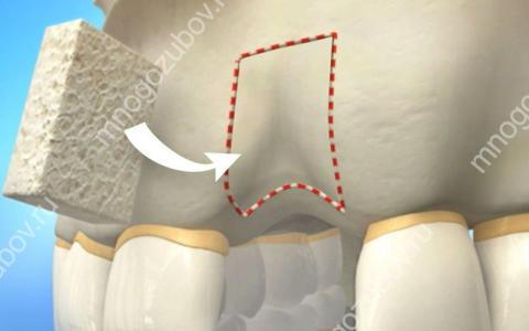 Костная пластика в имплантации