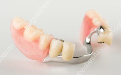 Зубные протезы на микрозамках