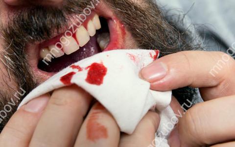 Почему кровь не останавливается после удаления зуба
