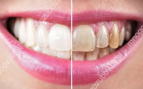 Пигментация зубов – что делать