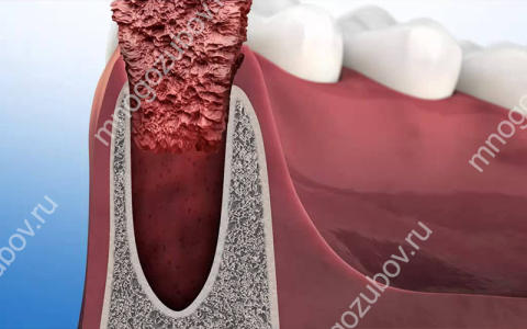 Что такое перевязка после удаления зуба