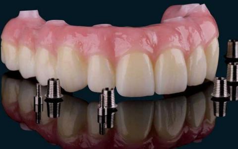 Несъемный зубной протез на имплантах — отличная альтернатива натуральным зубам