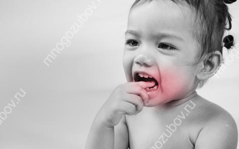У ребенка болит зуб: причины, лечение и как помочь при сильной зубной боли