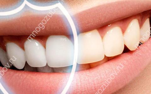 Как быстро укрепить эмаль зубов