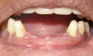 Фото: Потеря зубов
