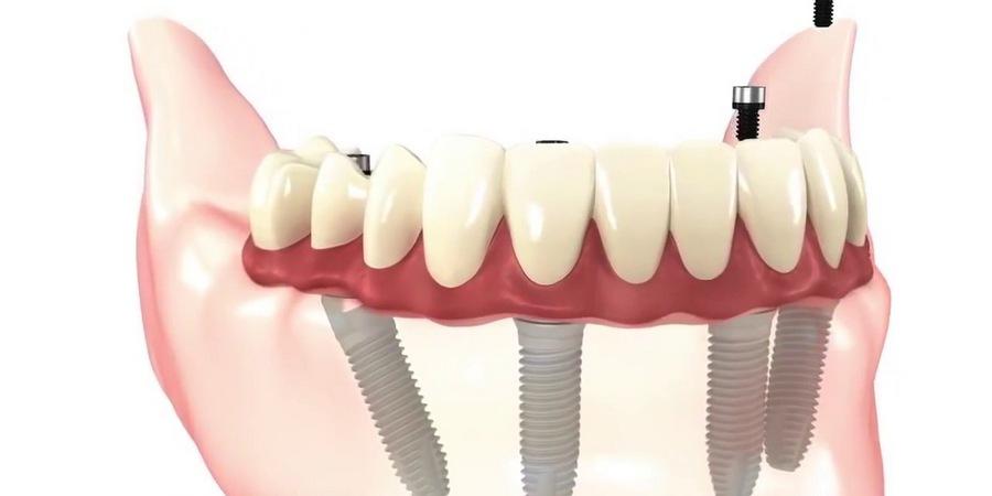 Восстановление всех зубов на 4х имплантах