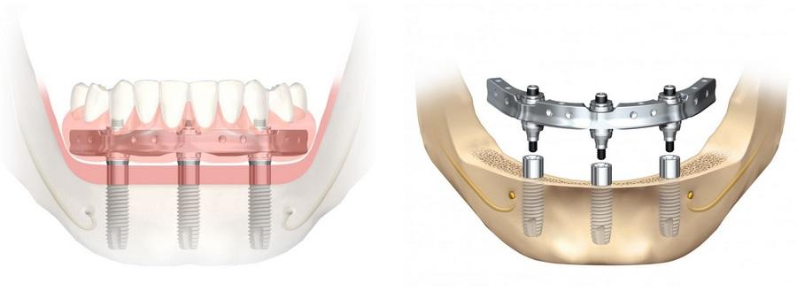 имплантация зубов Nobel Trefoil