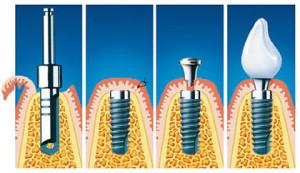Фото: Этапы имплантации зубов