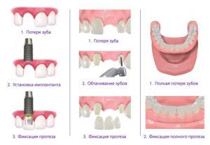 Все за и против титановых имплантов зубов