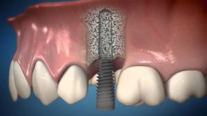 Фото: Восстановление зуба