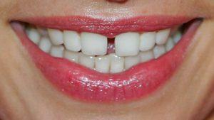 Фото: Промежуток между зубами
