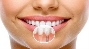 Фото: Противопоказания к имплантации зубов