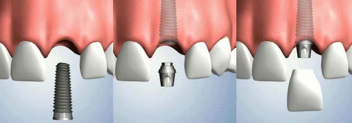 Фото: Установка импланта