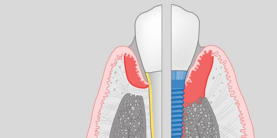 Разновидности осложнений после имплантации зубов