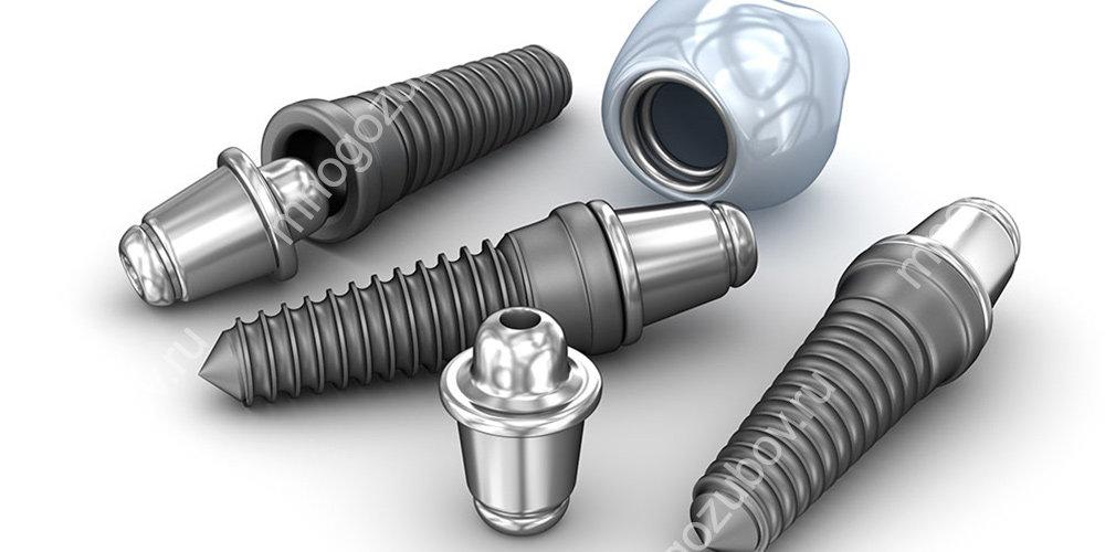 Виды зубных имплантов какие бывают