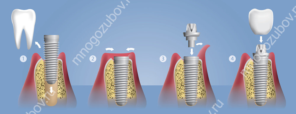 Метод классической имплантации