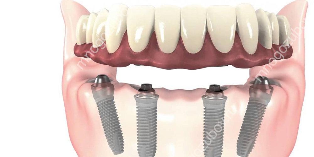 Методики восстановления зубов за один день