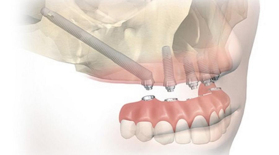 Установка скуловых имплантов как альтернатива синус лифтингу