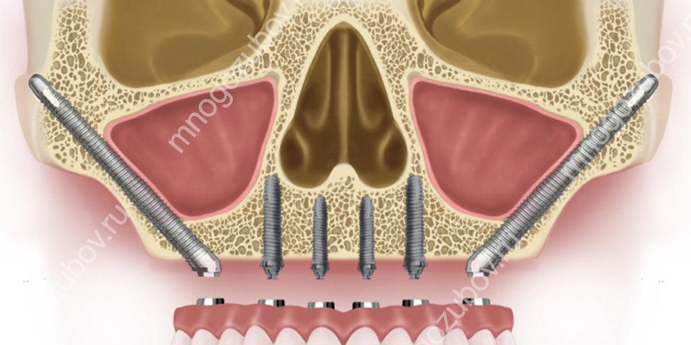Скуловые зубные импланты Зигома