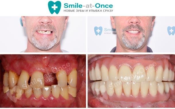 фото до и после имплантации all on 6