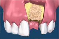 Синус-лифтинг в стоматологии: рекомендации и противопоказания, обзор цен