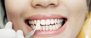 Фото: Зубы не обтачиваются