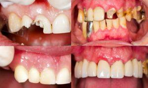Фото: Восстановление зубов