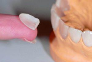 Фото: Виниры сделают улыбку белоснежной