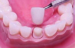 Фото: Зубная коронка
