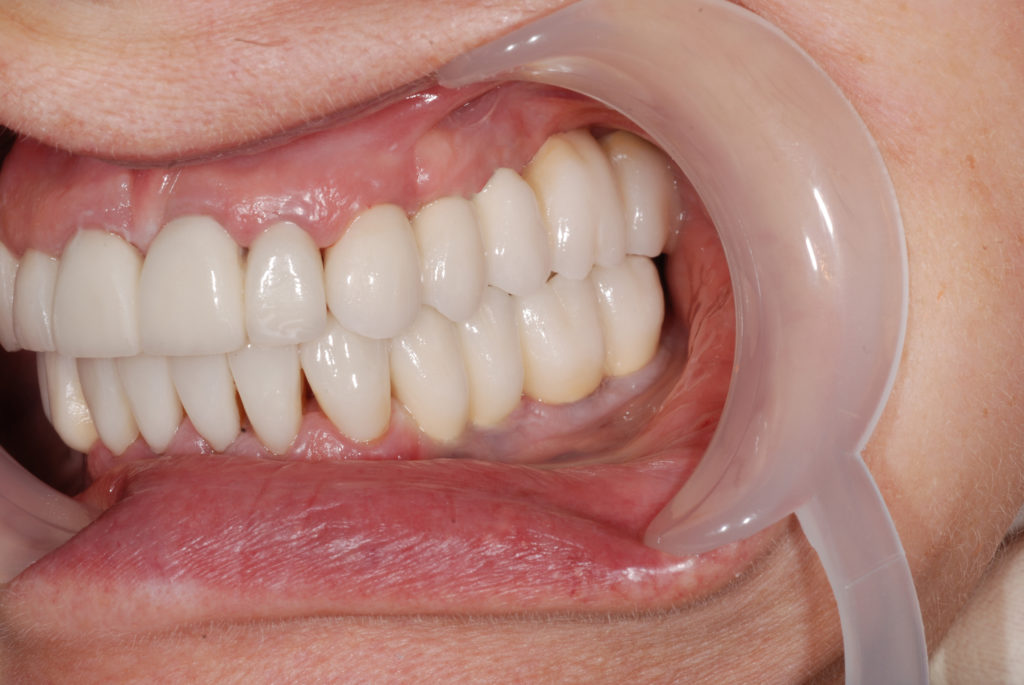 коронка мост на зубы фото услугам гостей частный